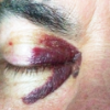 Racoon Eyes - symptom of a head injury
